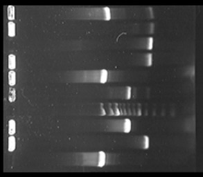 DNA electrophoresis showing the inserts in eight different (Escherichia coli) clones. We are cloning promoters from Mycobacterium smegmatis which are active in stationary phase. Primm Lab